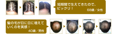 使用事例 before after